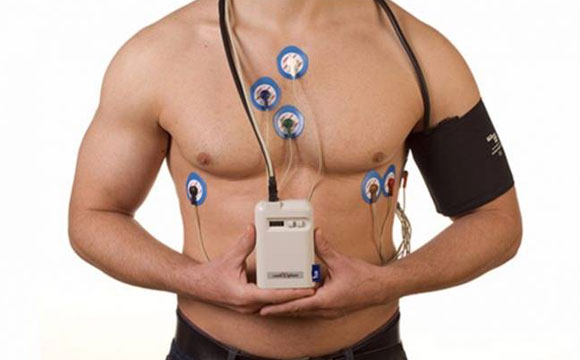 Holter cardiaco 24 ore